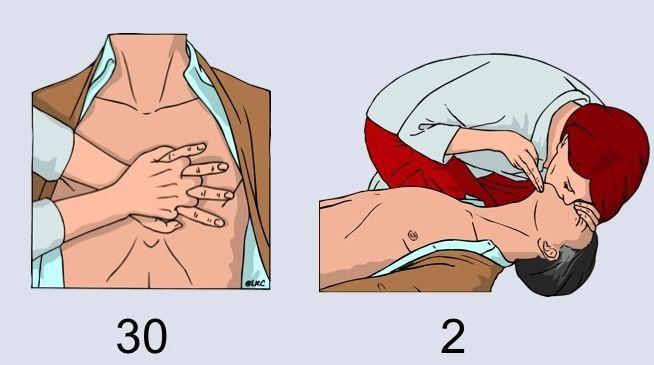 Правила проведения искусственной вентиляции легких